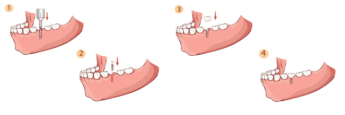 Simi Valley The Dental Implant Procedure