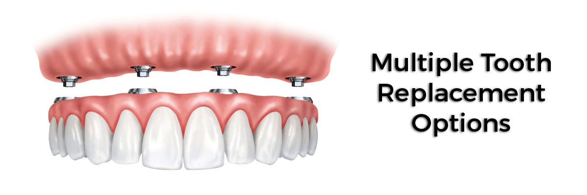 Simi Valley Multiple Teeth Replacement Options
