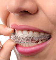 Clear Aligners - Almost Invisible Braces Simi Valley, CA