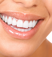 Teeth Whitening Services Simi Valley, CA