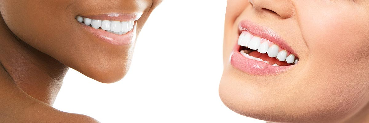 Simi Valley Teeth Whitening