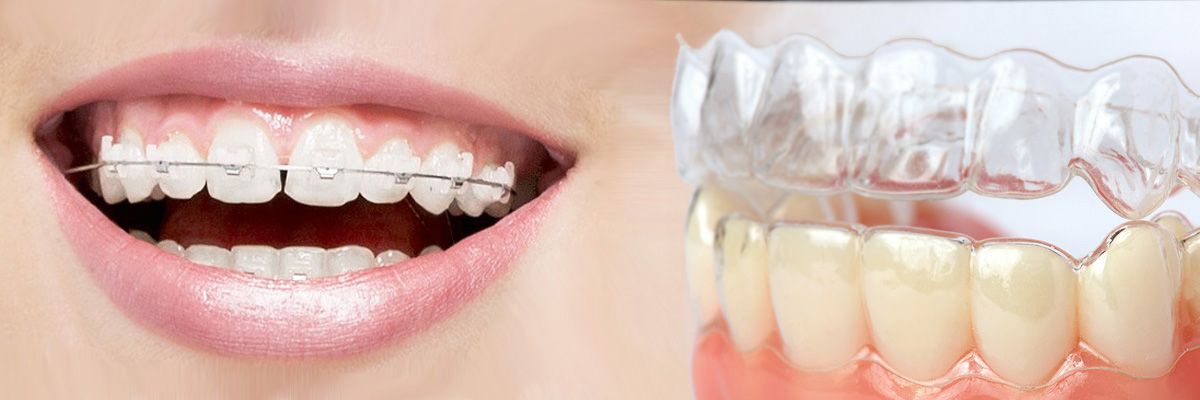 Simi Valley Which is Better Invisalign or Braces