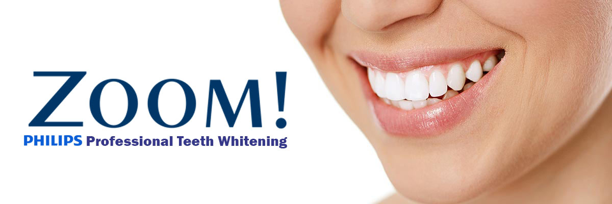 Simi Valley Zoom Teeth Whitening